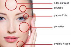 redim-zones-de-traitement-du-visage-par-hifu-finesse-rhxhm